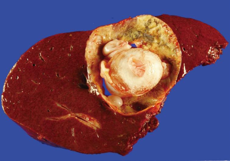 fine needle aspiration cytology of hepatic hydatid cyst: a case study, Cephalic Vein